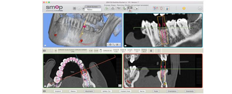 3次元で骨格を解析