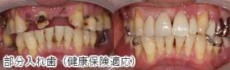 部分入れ歯(健康保険適応)