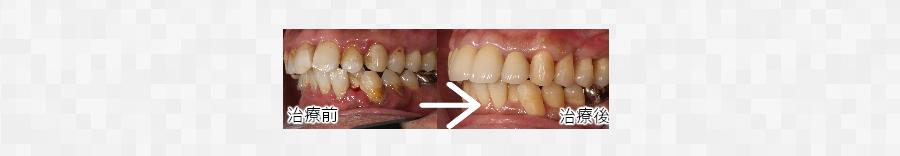 歯周病(歯槽膿漏)の治療